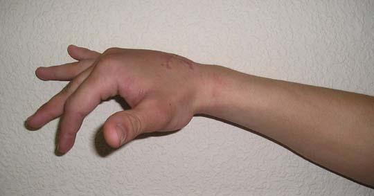 не проходит опухоль сустава пальца