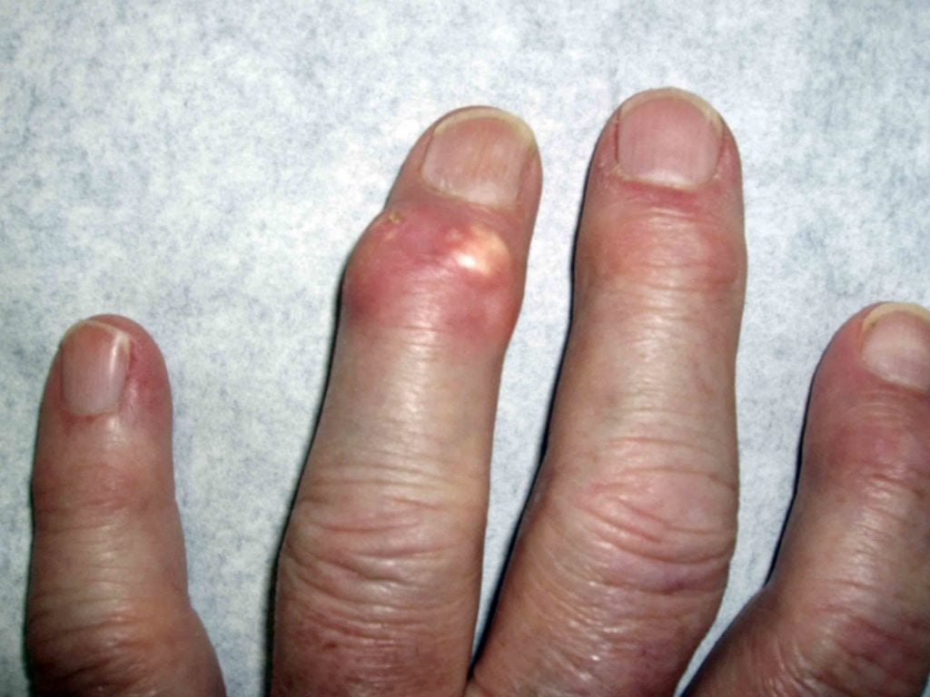 Подагра на руках: как лечить локтевой сустав и пальцы