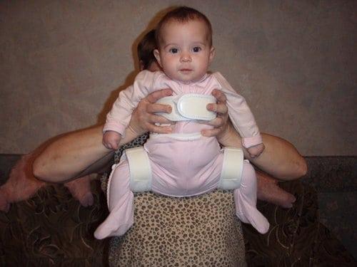 распорка при дисплазии тазобедренных суставов фото