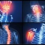Ревматоидный артрит у женщины