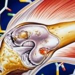 ревматоидный артрит - проявления у женщин