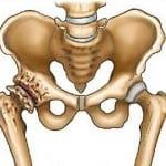 артроз тазобедренных суставов