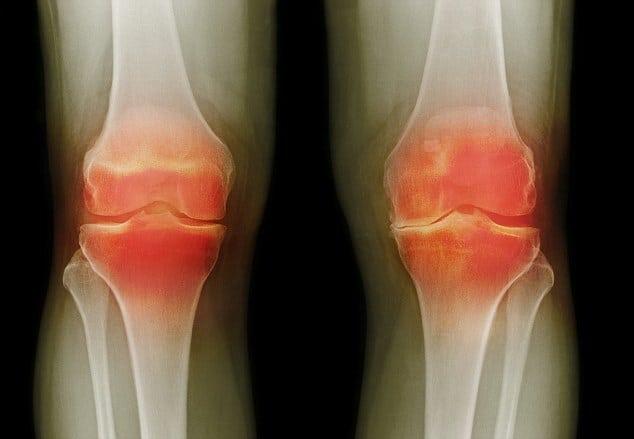Подагра коленного сустава: симптомы и лечение колена