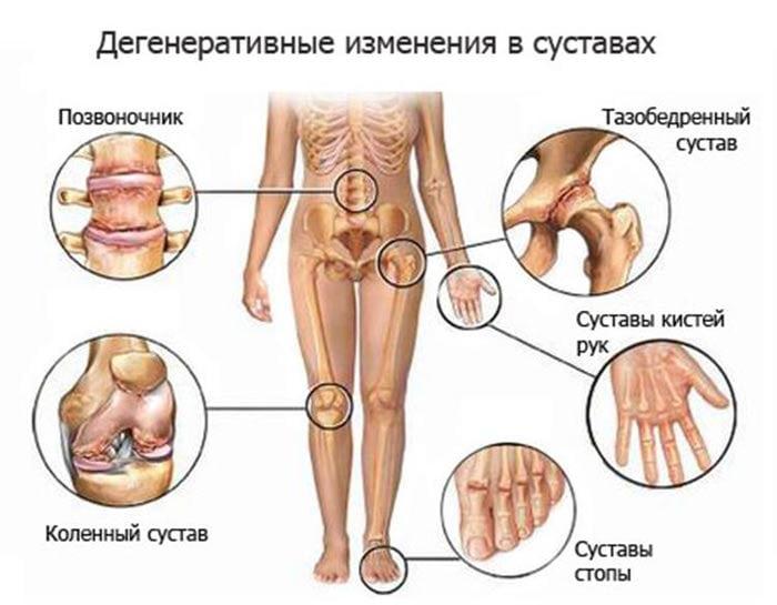 Артрит плечевого сустава причины симптомы и лечение