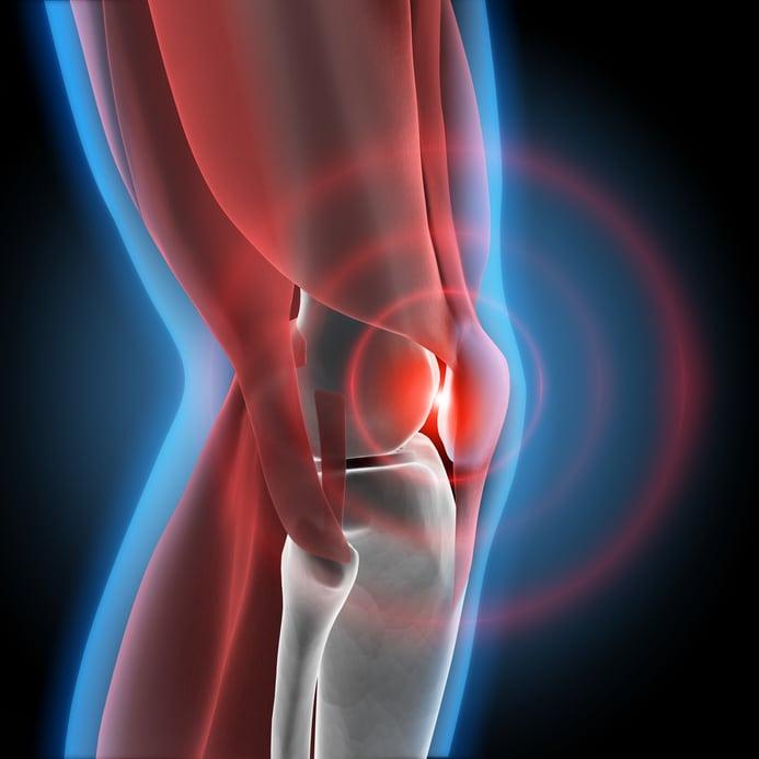 как снять воспаление коленных суставов быстро
