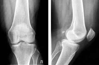 Как развивается артроз коленного сустава