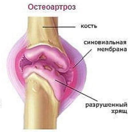 Остеоартроз коленного сустава 1 степени лечение народными средствами