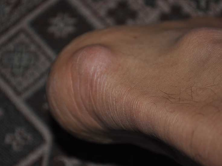Между ног красные пятна чешутся лечение