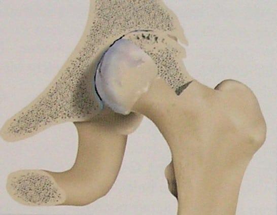 Сухой мозоль на пальце ноги народное лечение