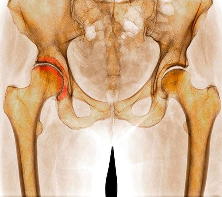 лечение артроза тазобедренного сустава народными средствами