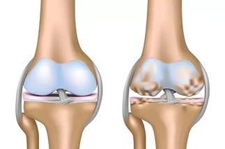 Генерализованный остеоартроз: лечение первичной формы