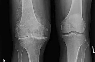 Артроз коленного сустава 4 степени: лечение и операция