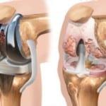 протезирование при артрозе
