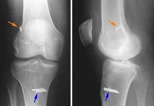 Артроз 1-2 степени коленного сустава берут ли в армию тазобедренный сустав корал клуб