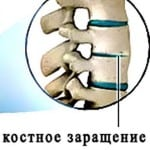 симптомы при болезне Безхтерева