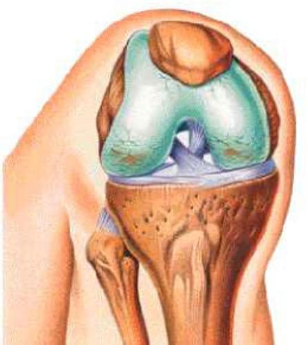 артроз лечение коленного