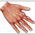 бурсит на пальцах рук