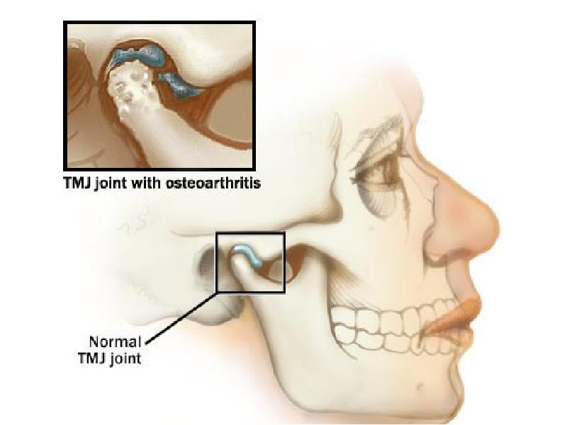 Остеоартроз ВНЧС: лечение височно-нижнечелюстного сустава