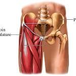 Растяжения и разрывы паховых мышц