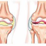 боли при артритах