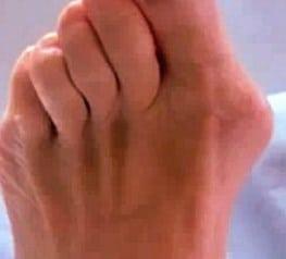 артрит большого пальца ноги симптомы
