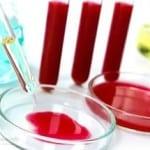 анализы крови при артрите