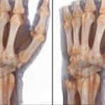 снимок лучезапястного сустава на томографе.