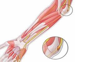 Защемление локтевого нерва: симптомы и лечение сустава