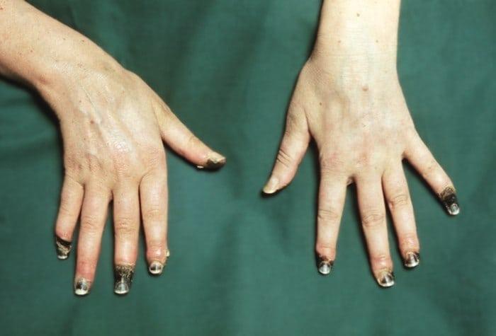 почему канечности рук постояно красные