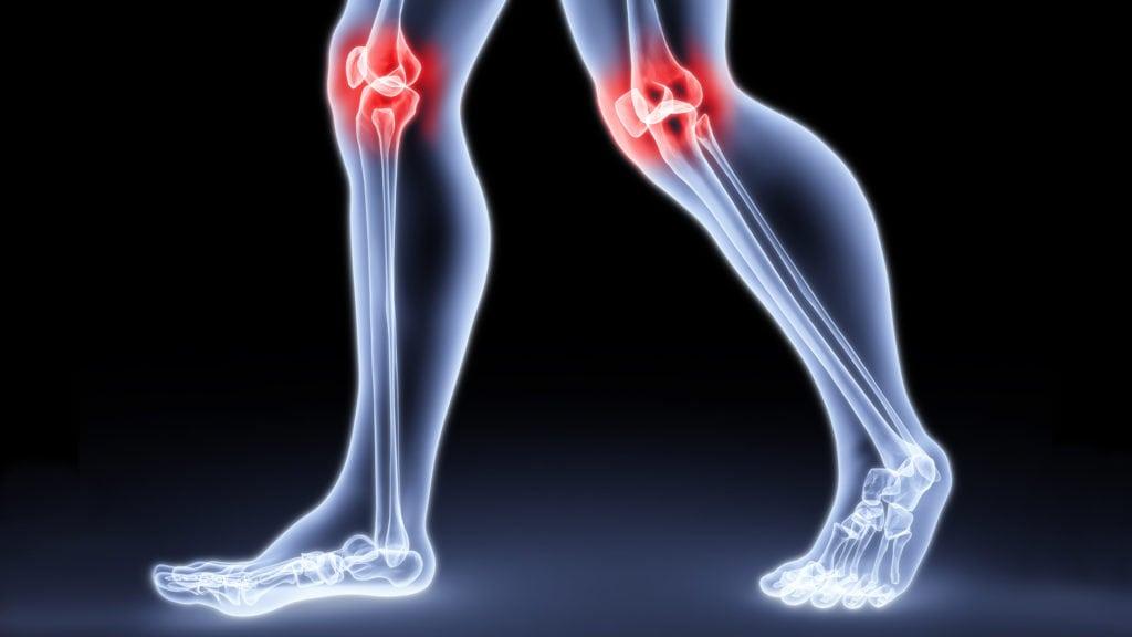 Болит коленный сустав - что делать? Как снять боль.