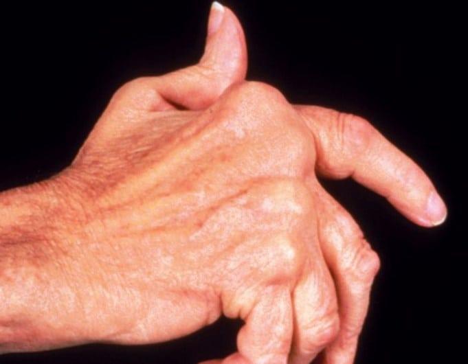 Ревматоидный артрит: причины возникновения заболевания