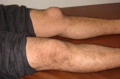 Жидкость в коленном суставе причины и лечение симптомы диагностика