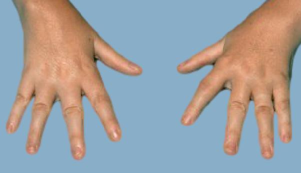 Лфк при ревматоидном артрите - лечебная гимнастика комплекс упражнений