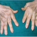 Артроз кисти руки симптомы и лечение