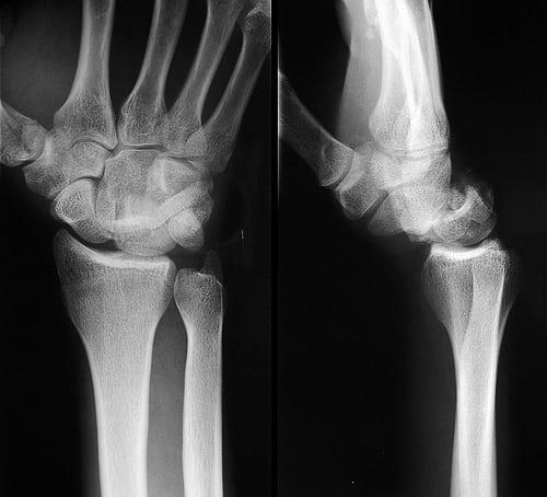 Лечение грибка на ногтях ног с помощью уксуса