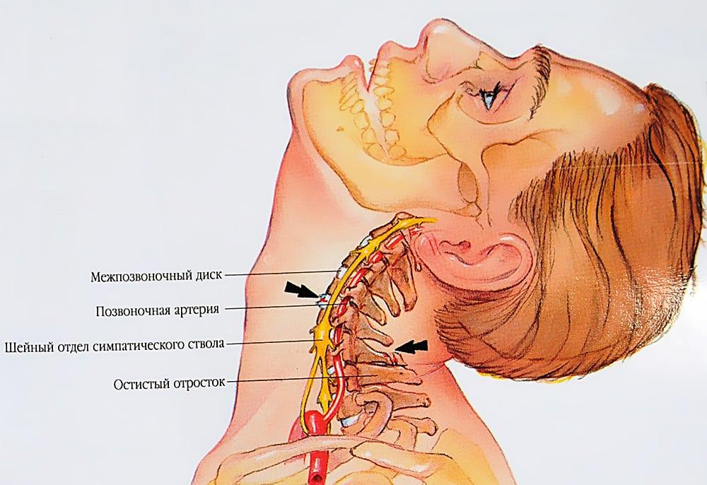 Как определить хондроз шейного отдела