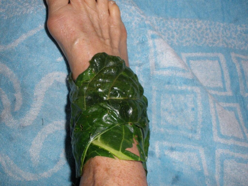 Что такое цервикобрахиалгия симптомы и лечение