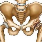 остеопороз и вывих