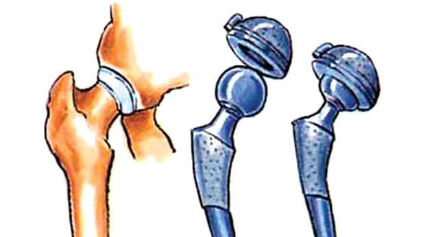 Вывих после эндопротезирования тазобедренного сустава