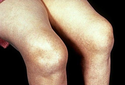 Классификация ревматоидного артрита: стадии и признаки