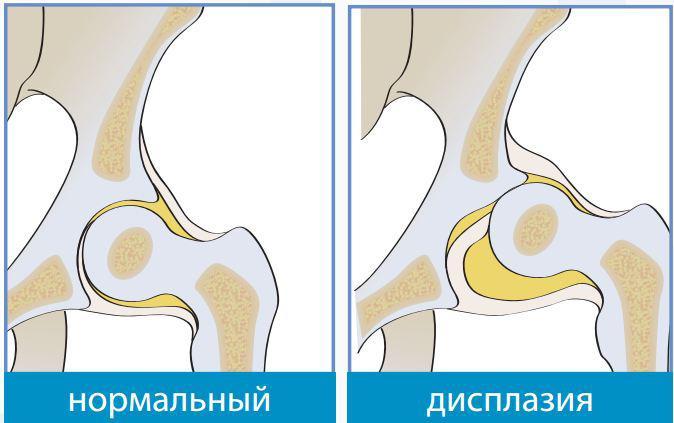 Боли в правой стороны грудины