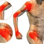 артрит и артроз