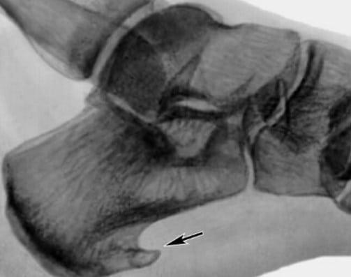 Фото артрит пятки лечение