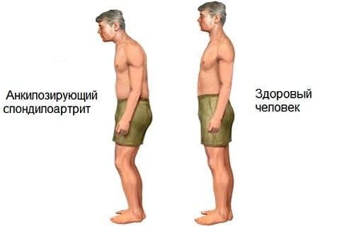 Болезнь Бехтерева  лечение симптомы причины
