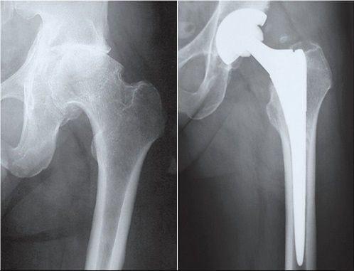 Двустороннее эндопротезирование тазобедренного сустава перелом костей 3, 4 суставов ног