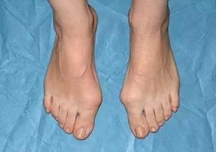 Что можно предпринять если болит большой палец на ноге в суставе