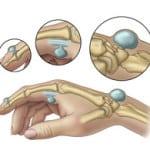 расположение гигромы на руке