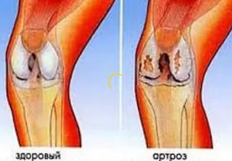 Болят колени у женщин - симптомы причины лечение (видео)