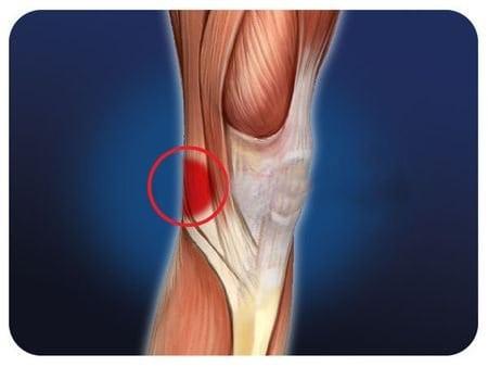 Боли в ногах в первые дни месячных
