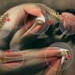 психосоматические боли при артрите